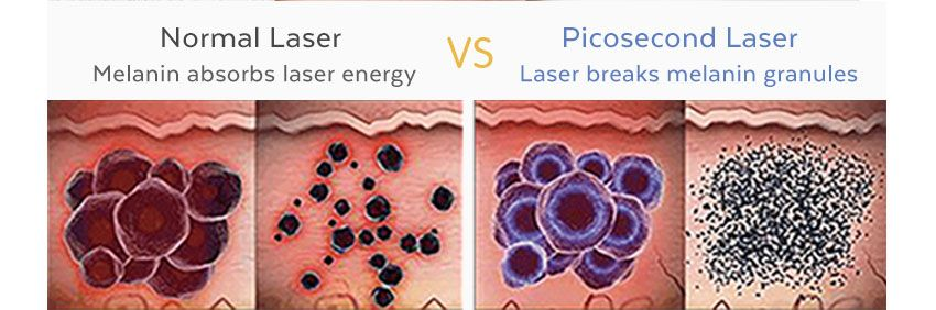 picosecond laser tattoo removal machine Principle of treatment