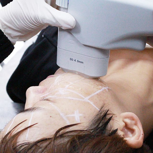 Professional Face Focused Hifu Ultrasonic Skin Rejuvenation Anti Aging Machine